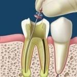Endodoncias dentales en Valencia