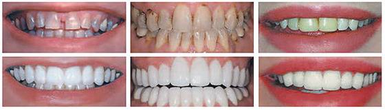 estetica-dental_1