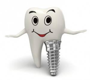 Oferta en implantes dentales en Valencia