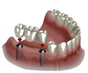 Precio implantes dentales Valencia