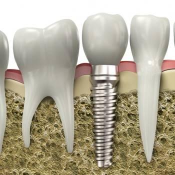 Implantología dental en Valencia