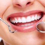 Servicios de estética dental en Valencia