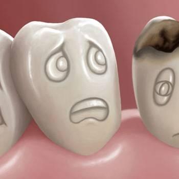 Odontología conservadora en Valencia