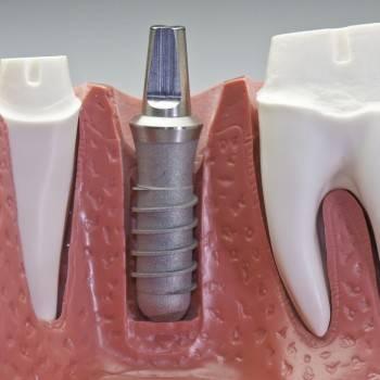 Realizamos implantes dentales en Valencia