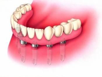 Servicios de implantología dental en Valencia