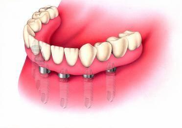De dental precios implantologia