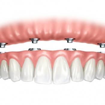 Los mejores precios en implantes dentales en Valencia