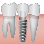 Implantología dental