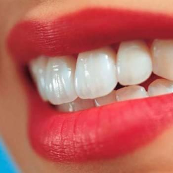 Ofertas dentales en Valencia