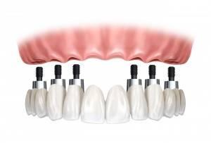 Precio de implantes dentales