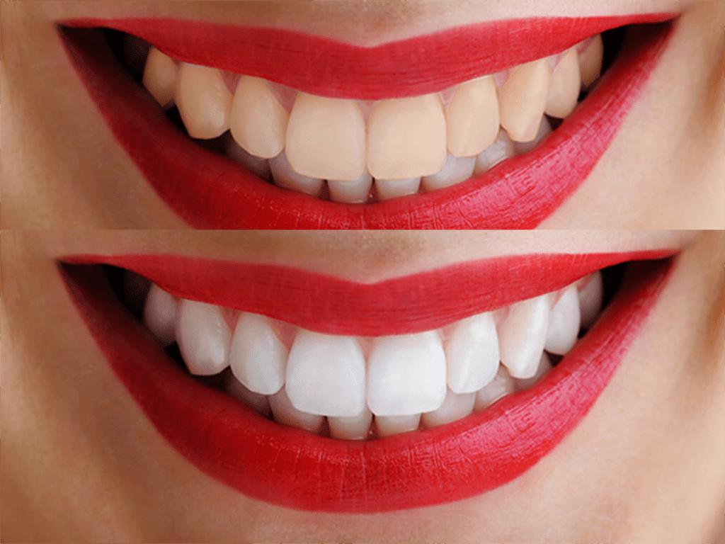 голливудская улыбка perfect smile veneers