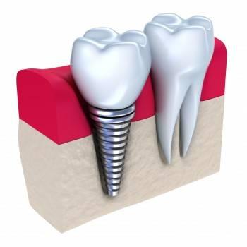 Precio de implantes dentales en Valencia