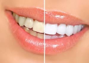Tratamiento de blanqueamiento dental