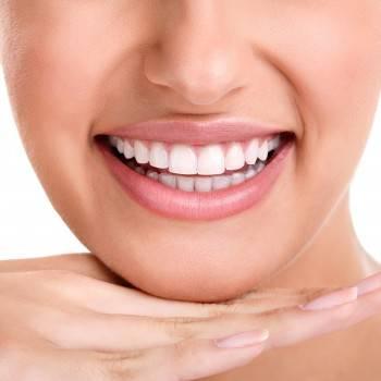 Servicios de blanqueamiento dental en Valencia