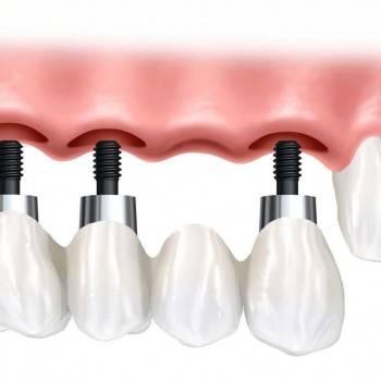Profesionales en implantes dentales Valencia