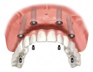 Implantología dental Valencia