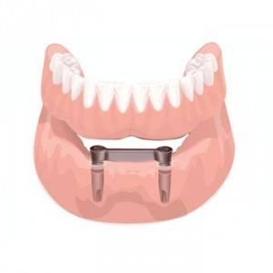 Precio para implantes dentales Valencia