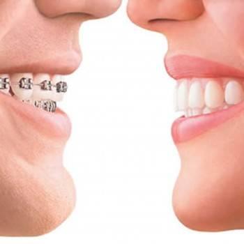Servicios de odontología estética en Valencia