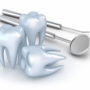 Tratamientos dentales Valencia