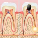 Endodoncias dentales Valencia