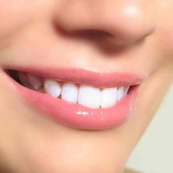 Estética dental Valencia