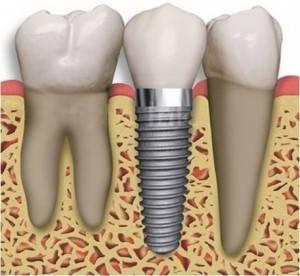 Implantes de última tecnología Valencia