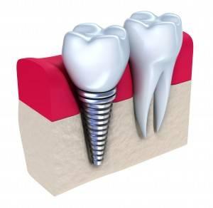 El mejor precio en implantes dentales Valencia