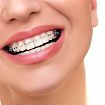 Precio ortodoncia en Valencia
