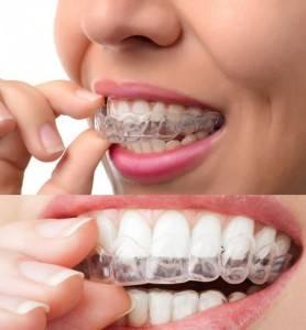 Presupuesto ortodoncia Valencia - Imagen de ortodoncia invisible