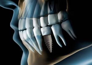 Valoración implantología gratuita Valencia - Radiografía de implantes dentales
