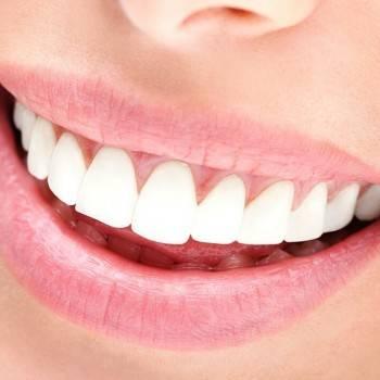 Blanqueamiento dental Valencia de calidad