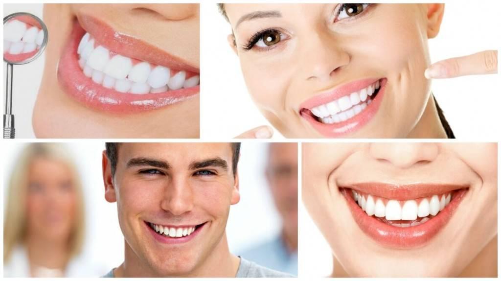 Blanqueamiento dental Valencia de calidad - Imágenes de blanqueamiento dental