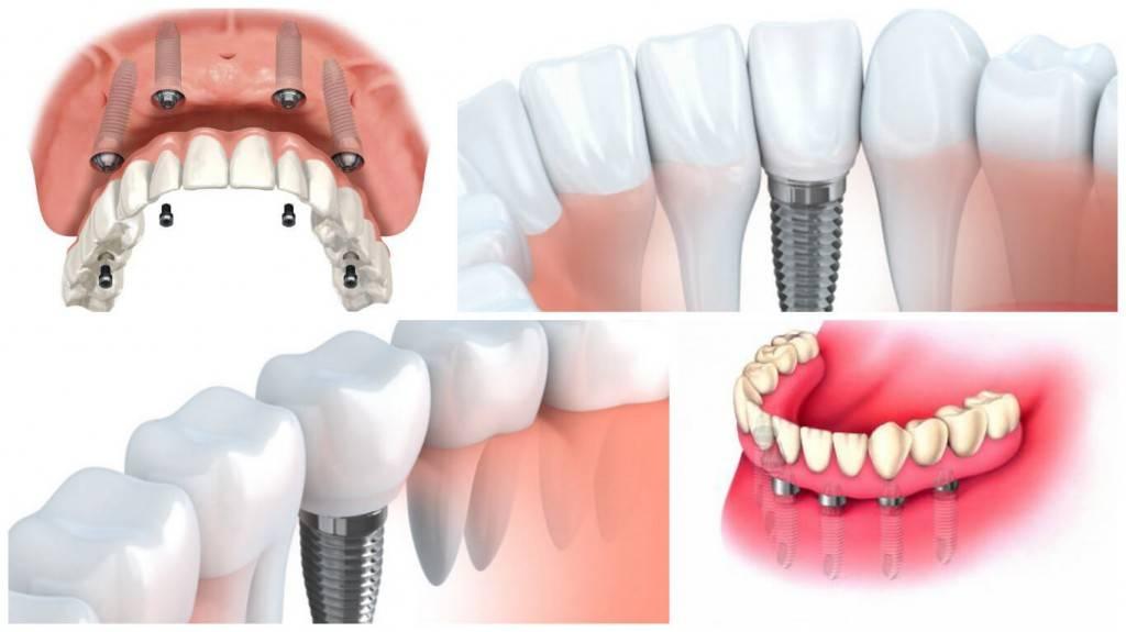 Tratamientos de implantología Valencia - Odontólogos profesionales