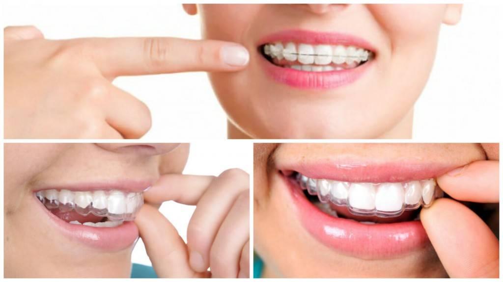 Tratamientos dentales - Imagen de varios tratamientos