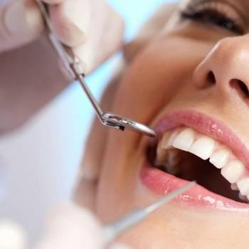 Clínica odontológica Valencia - Clínica Profesional