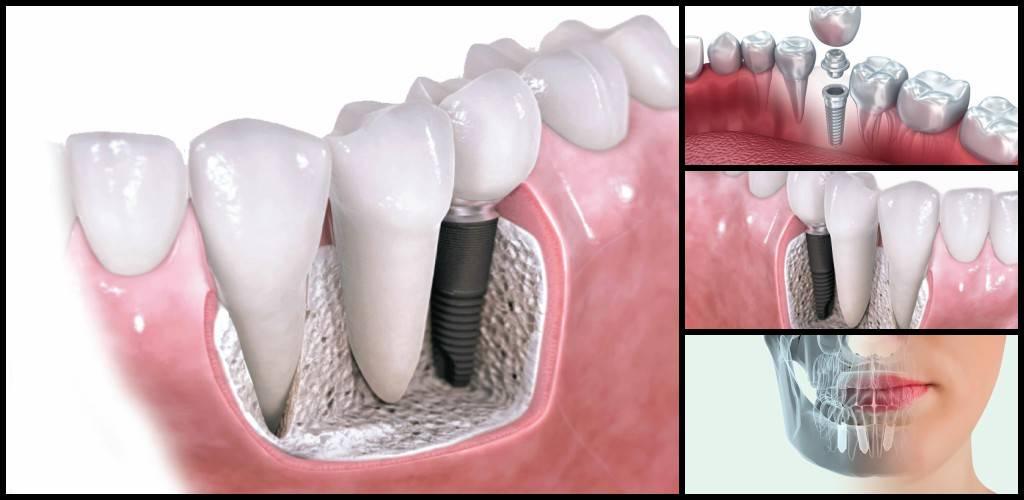 Implantes Valencia - Servicios de implantología dental