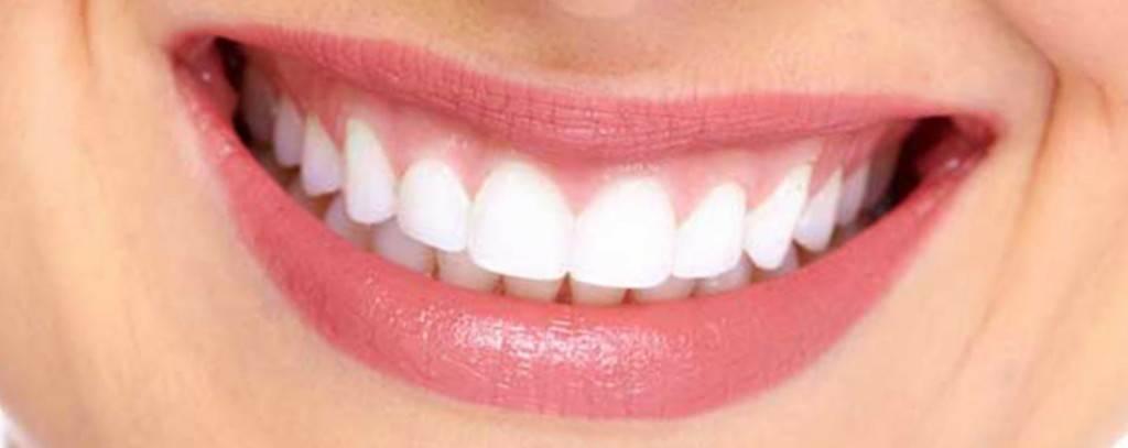 Blanqueamiento dental Valencia - Clínica Dental Almar