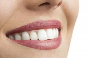 Blanqueamiento dental Valencia - Clínica con experiencia