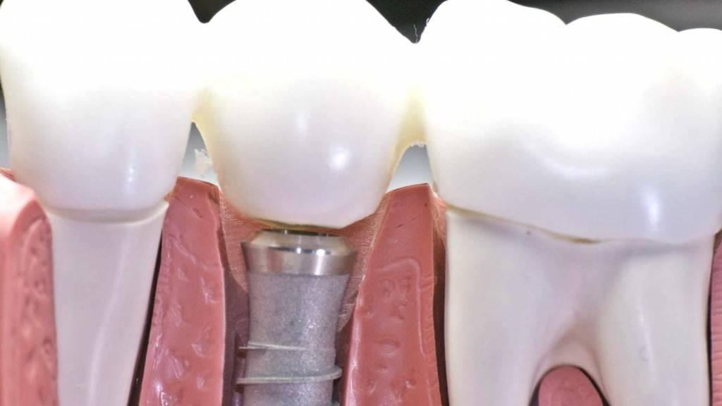 Implantes dentales Valencia - Clínica dental con experiencia