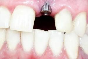 Implantes dentales Valencia - Solución definitva para sustituir dientes