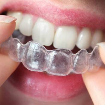Ortodoncia invisible Valencia - Clínica dental con experiencia