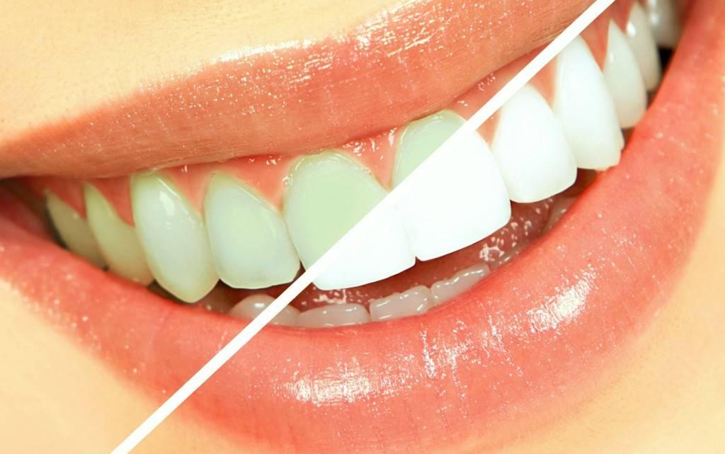 Blanqueamiento dental Valencia - Odontólogos profesionales