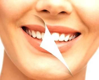 Blanqueamiento dental Valencia - Tratamientos de alta calidad