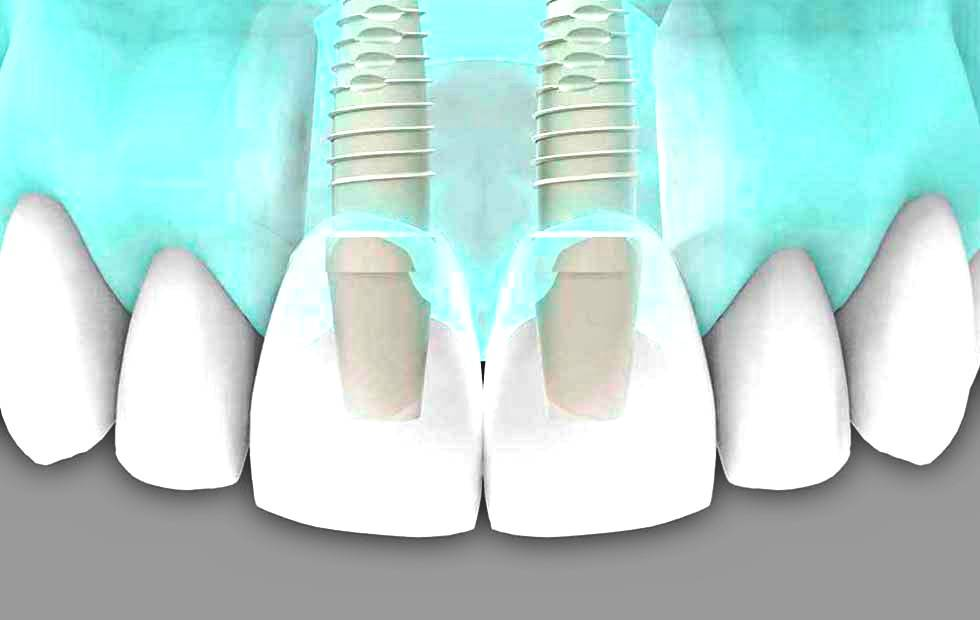 Implantes dentales Valencia - Tratamientos de implantología dental