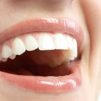 Odontología estética Valencia - Sonrisa perfecta