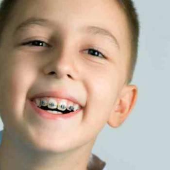 Ortodoncia infantil Valencia - Tratamientos de calidad