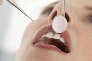 Dentistas Valencia - Odontólogos profesionales