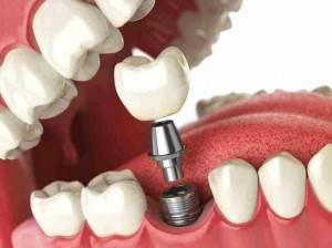 Implantología dental Valencia - Tratamientos de alta calidad