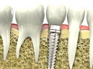 Implantes dentales Valencia - Clínica de implantología dental