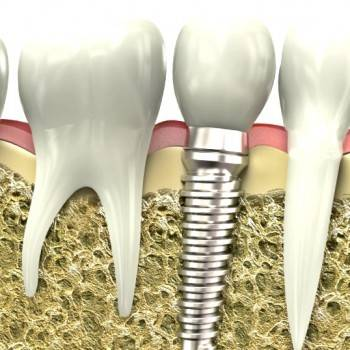 Implantes dentales Valencia - Clínica de implantología dental